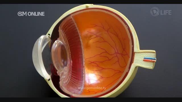 دکتر لایف-چشم-بانک مستند
