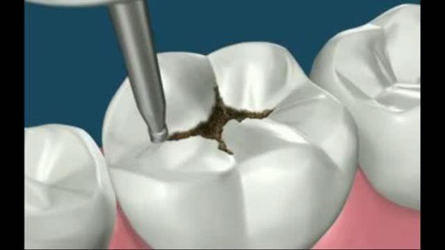 پرکردن همرنگ دندان
