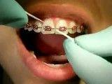 طریقه صحیح استفاده از نخ دندان با دندان های ارتودنسی شده