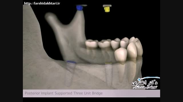 ایمپلنت دندان و بریج های دندانی