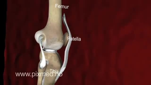 آرتروز مفصل زانو Knee Arthrosis