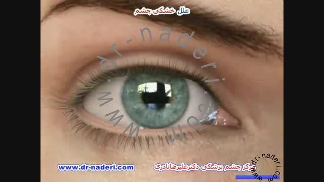 علل خشکی چشم - مرکز چشم پزشکی دکتر علیرضا نادری