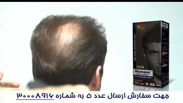 پودر پرپشت کننده ی موی سر - هونام