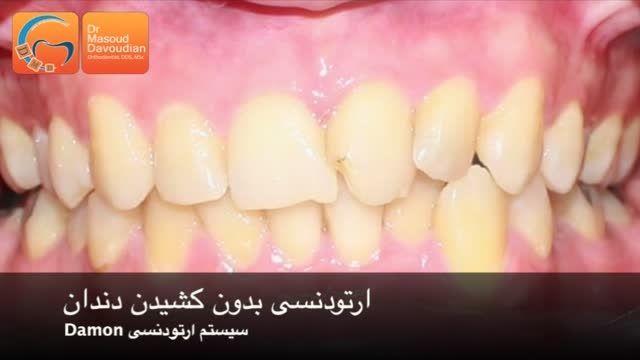 درمان ارتودنسی بدون کشیدن دندان | دکتر مسعود داوودیان