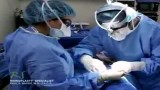 فیلم عمل جراحی واقعی بینی