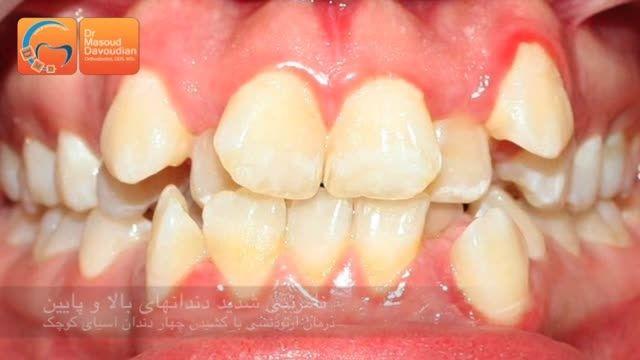 قبل و بعد ارتودنسی با کشیدن دندان | دکتر مسعود داودیان