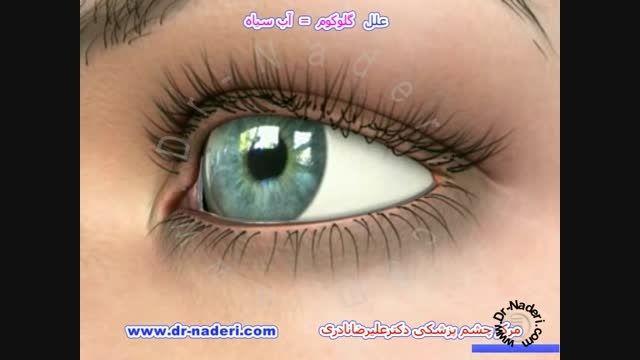 علل گلوکوم یا آب سیاه- مرکز چشم پزشکی دکتر علیرضا نادری