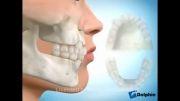 کشیدن دندان برای ارتودنسی | دکتر مسعود داودیان