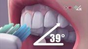 How to brush your teeth ( دکتر آذر اصلانی مقدم )