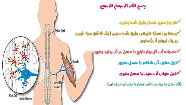 درمان بیماری نورون حرکتی