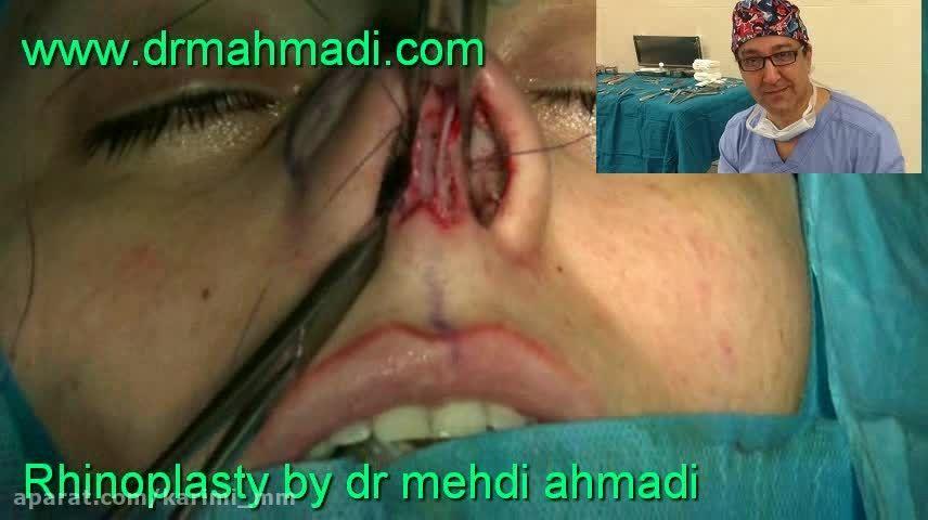 عمل زیبایی بینی(rhinoplasty)توسط متخصص گوش وحلق بینی24