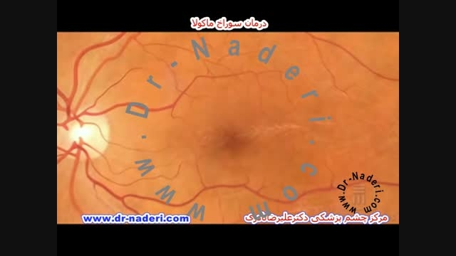 درمان سوراخ ماکولا  - مرکزچشم پزشکی دکتر علیرضا نادری