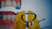 مراکز تخصصی ارتودنسی دکتر صدرالدینی: ارتودنسی متحرک 3