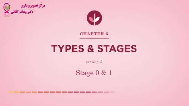 سرطان پستان- قسمت دوازدهم - مراحل سرطان - مرحله 0 و 1