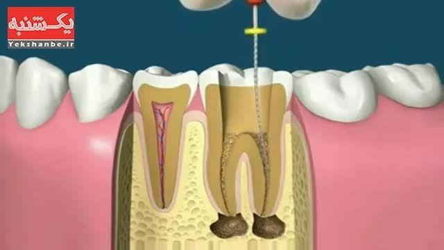 مراحل عصب کشی و روکش دندان