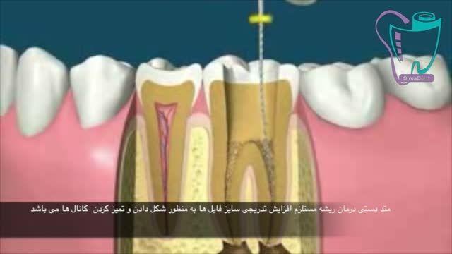 درمان ریشه دندان   سیمادنت