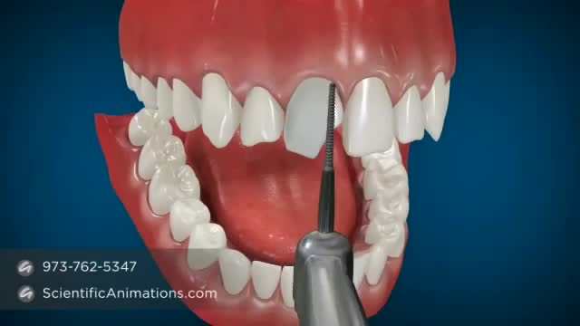 روش لمینیت برای زیبایی و سفید سازی دندان