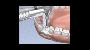 ایمپلنت(کاشت دندان)