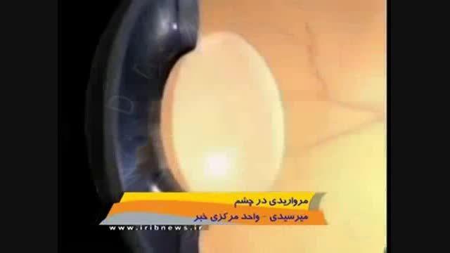 مروری کلی بر آب مروارید-سایت چشم پزشکی دکتر نادری