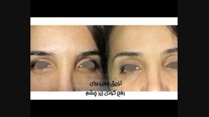دکتر حسین احمدی|متخصص پوست،مو و زیبایی