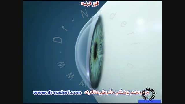 قوز قرنیه چیست؟ -مرکز چشم پزشکی دکتر علیرضا نادری