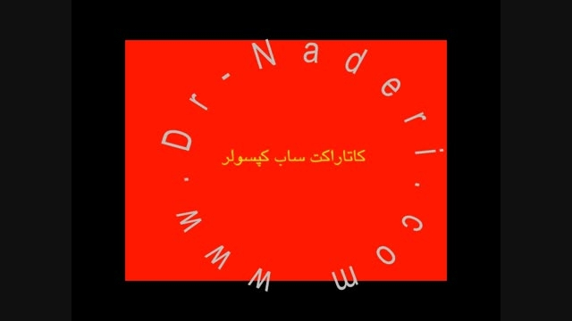 کاتاراکت ساب کپسولار -سایت چشم پزشکی دکتر علیرضا ناد ری