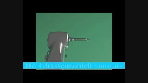 انیمیشن سینوس لیفت از حفره دندان