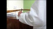 آزمون سنچخ - مورد دوم - بیماری سل