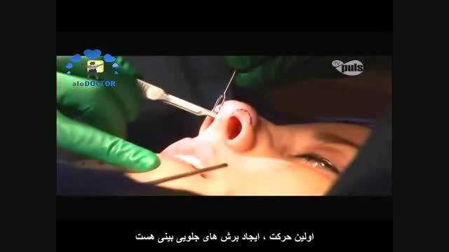 د کتر مسعود  بنیاد ی و آخرین پیشرفت ها در جراحی پلاستیک