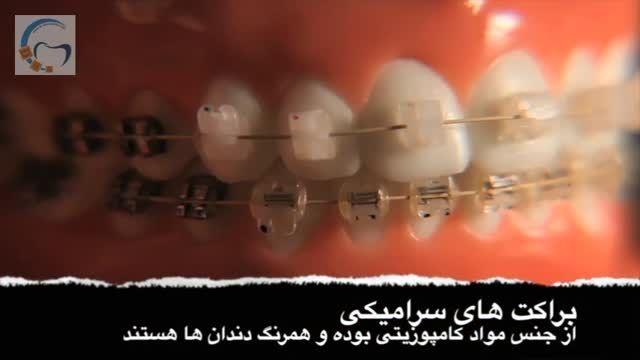 دستگاه های ارتودنسی جدید | دکتر مسعود داودیان