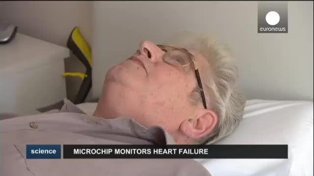 ریز تراشه برای کنترل وضع بیماران قلبی از راه دور