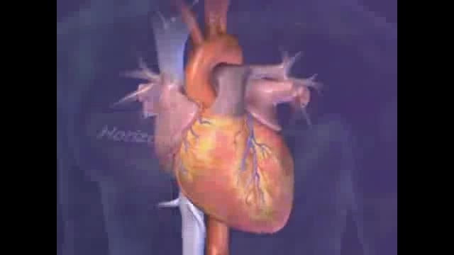انیمیشن نحوه ی جاگذاری لید های اندامی و سینه ای