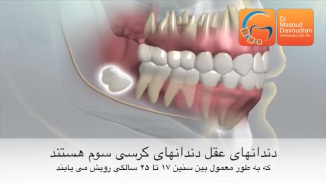 دندان عقل و ارتودنسی | دکتر مسعود داودیان
