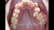 کشیدن یک طرفه دندان برای ارتودنسی | دکتر مسعود داودیان