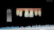 دندانپزشکی ترمیمی خلاق