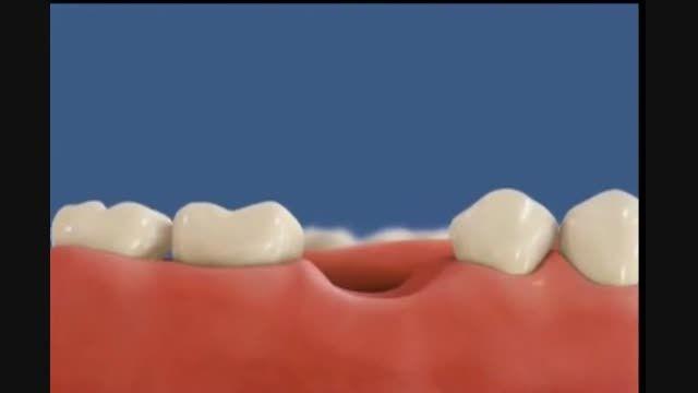 مراحل ایمپلنت مرکز دندانپزشکی و زیبایی دکتر زهدی