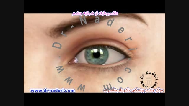 عکسبرداری از شبکیه - مرکز چشم پزشکی دکتر علیرضا نادری