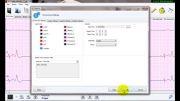 تنظیمات در نرم افزار تحلیل سیگنال هولتر ECG نسخه 3