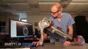 ساخت رباتی برای خارج کردن لخته های خون از مغز