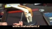 درمان سائیدگی زانو