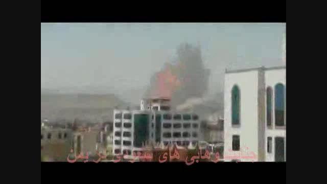 کشته و زخمی کردن 500 نفر از مردم یمن بابمب ویرانگر MOAB