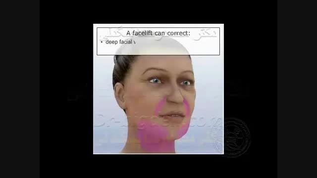 انیمیشن کشیدن پوست صورت