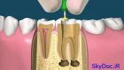 مراحل پرکردن دندان