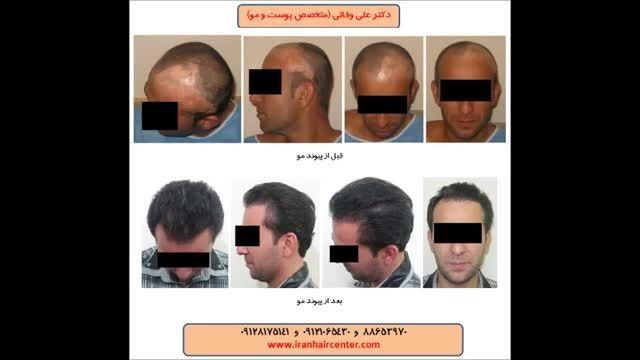 کاشت مو در پوست اسکار (جوشگاه)