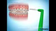 دکتر مسعود داودیان:نحوه استفاده از مسواک بین دندانی ارتودنسی