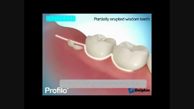 انیمیشن جراحی دندان عقل فک پایین در پوزیشن های مختلف