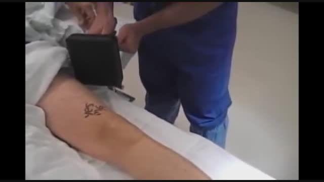آرتروسکوپی زانو(1)-دکتر توحید سیف برقی