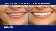 بررسی سفیدکننده دندان1-arzan2014.takshop91.biz