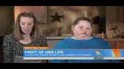 کمک خواستن برای درمان چاقی یک دختر