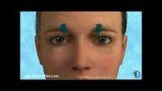 انیمیشن جراحی زیبایی پلک بالا